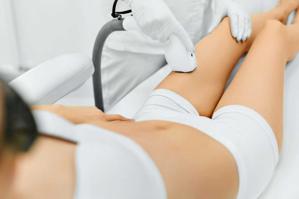 laser hair removal raleigh nc